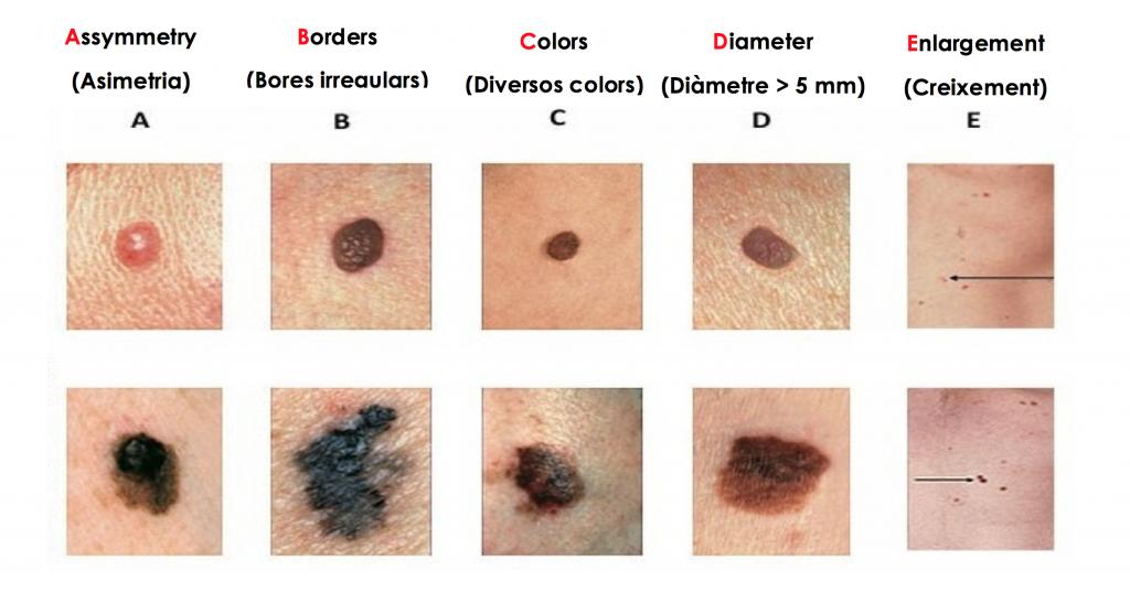 dermatologo-barcelona-cancer-de-piel