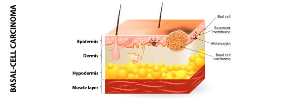 dr-lopez-gil-dermatologia-barcelona_600x200-carcinoma-basocelular