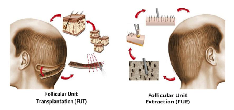 implante-transplante-capilar-barcelona-dr-lopez-gil-implant-transplant