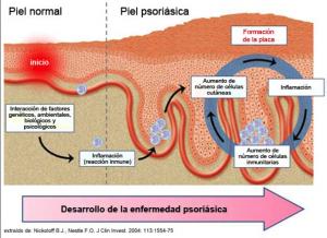 psoriasis-dr-lopez-gil-dermatologo-barcelona